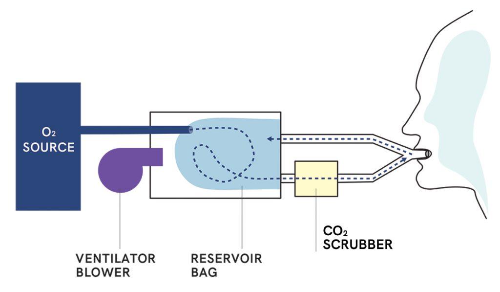 Diagram: Circle Circuit Ventilation